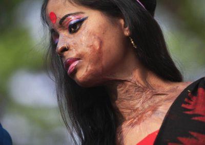 acid-attack-victim